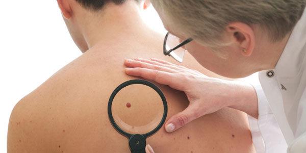Huile de nigelle cancer de la peau
