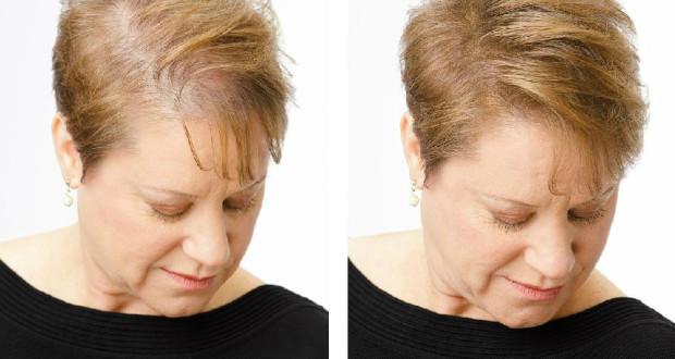 Les moyens pour lemballage pour les cheveux rares